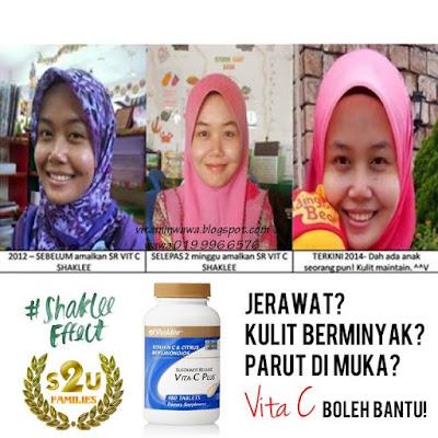 Sustained Release Vita C Plus Shaklee Hilangkan Jerawat, Parut & Berminyak