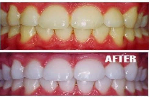أسنان أكثر بياض دون زيارة طبيب