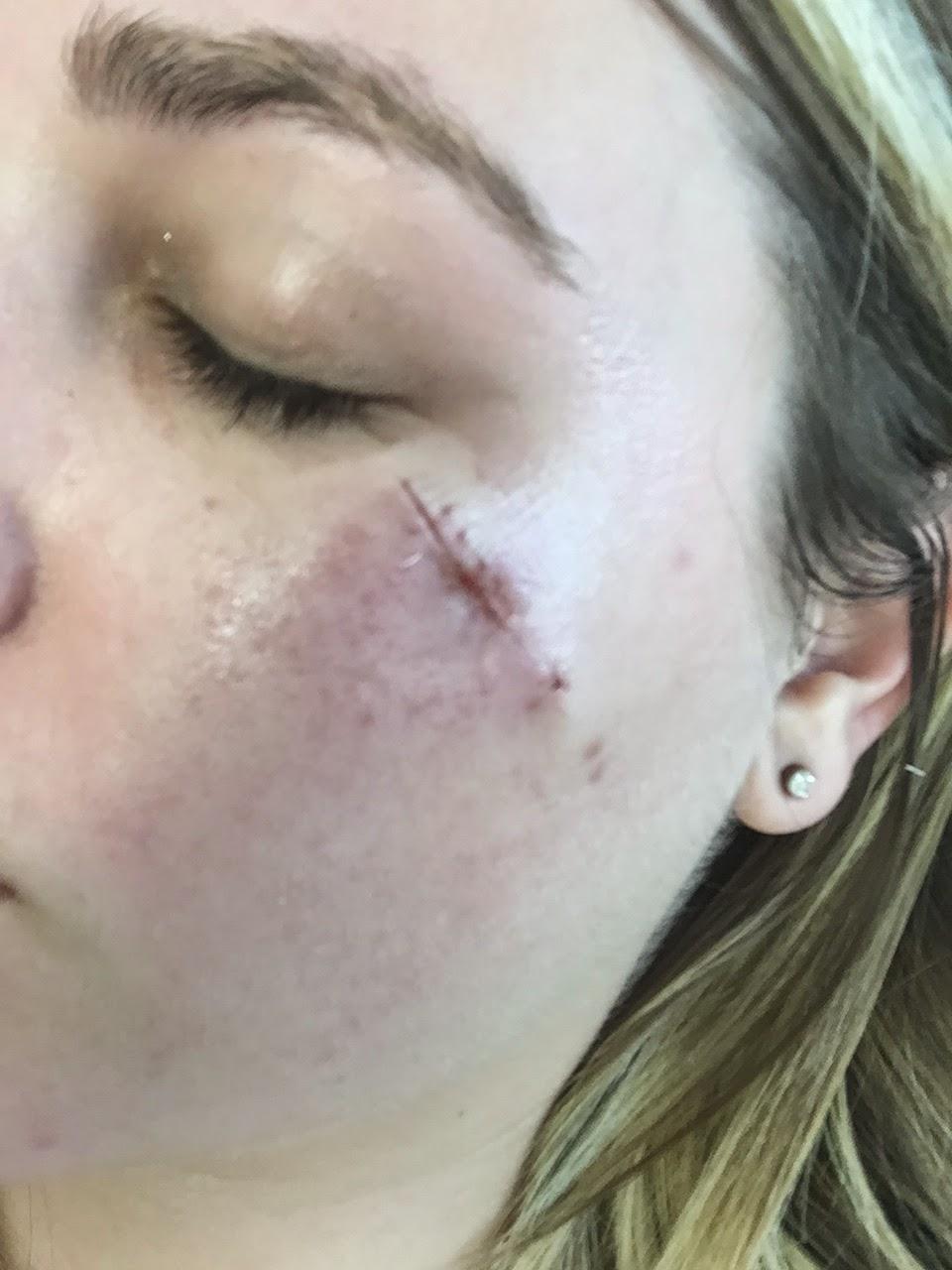 Jenna Leslye: Post Surgery Update