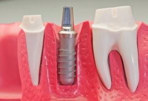 implante custo