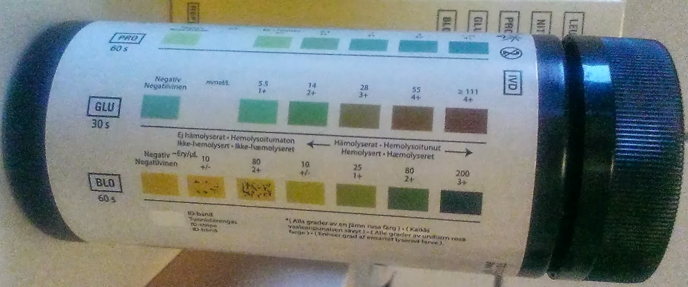 stix urin blærebetændelse