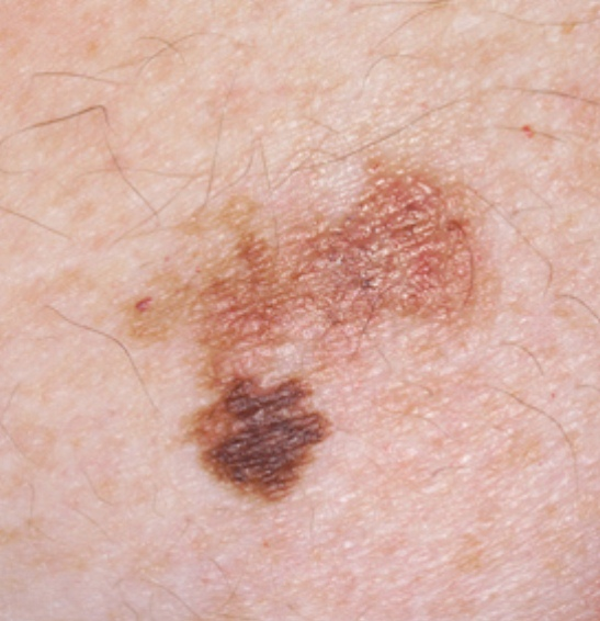 common skin cancer