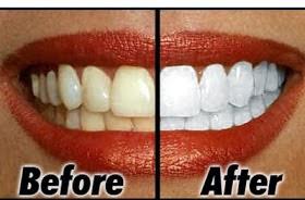 Cara Membuat Gigi Lebih Putih Hamdan Nawawi