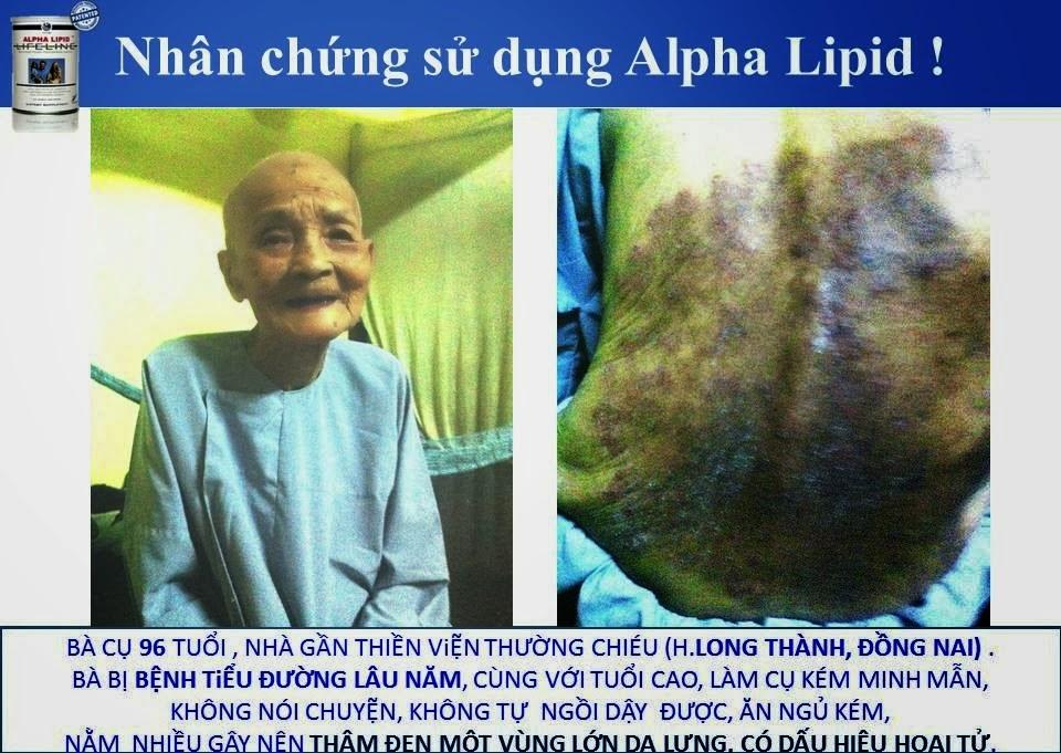 Công dụng của sữa non alpha lipid lifeline