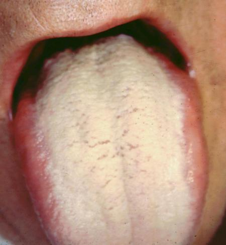 Geographic tongue - Mayo Clinic