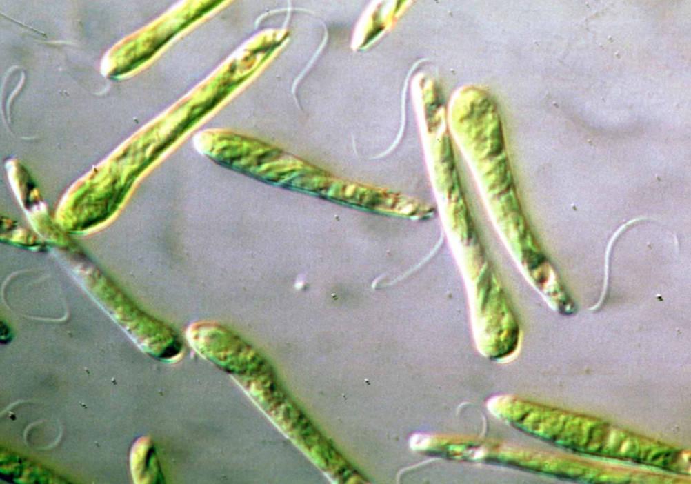 Di U00e1rio De Biologia  Os Tipos E As Caracter U00edsticas Das Algas
