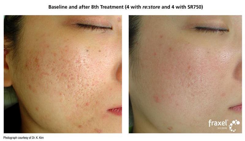 how to get rid of tweezer scars