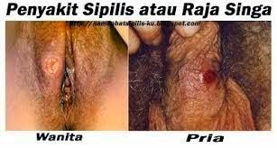 Penyakit Sipilis Dan Raja Singa