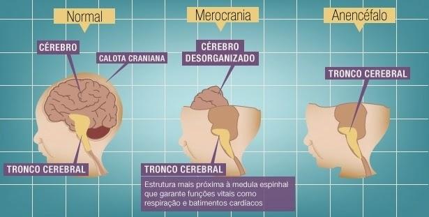 Sistema exemplificado que mostra as diferenças e progressões entre um cérebro normal e um caso de anencefali