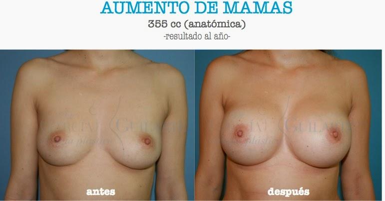 mamoplastia_madrid_cirujano