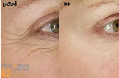 alternatywa dla botoksu - peeling kwasem dermatologiczym