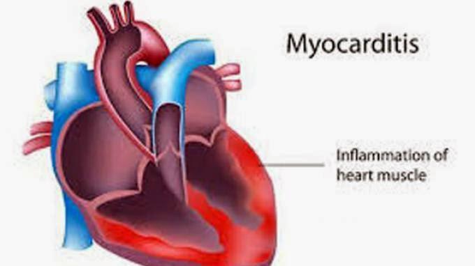 Waspada Myocarditis, Penyakit Jantung Karena Virus
