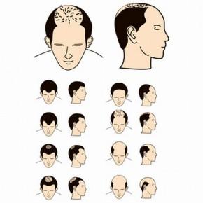 La máscara para los cabellos con el kéfir y la alheña las revocaciones