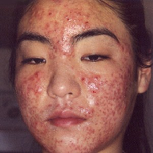 Acne scars are the result of inflammation within the dermis brought on ...