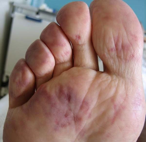 La tromboflebitis de su causa