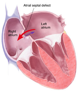 Atrial Septal Defect Nursing Diagnosis Nursing Intervention