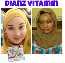 DIANZ VITAMIN C&E + WHITENING COLLAGEN 6000MG