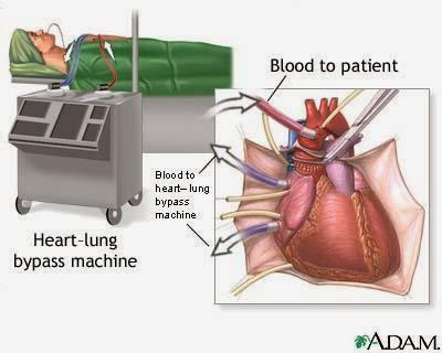 pembedahan jantung