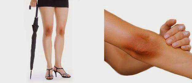 penyebab siku dan lutut yang gelap. tips mencerahkan siku dan lutut yang gelat, tips mencerahkan dan merawat kulit