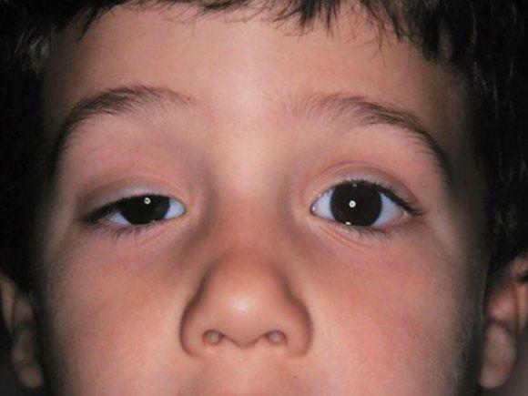 Morfofuncin: Cabeza y cuello: Esfenoides