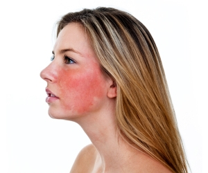Very dry red skin on face