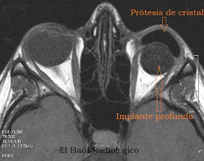 Protesis+ocular+3.png