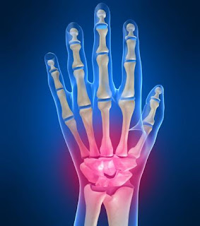 Top 7 Tips To Relieve Wrist Pain