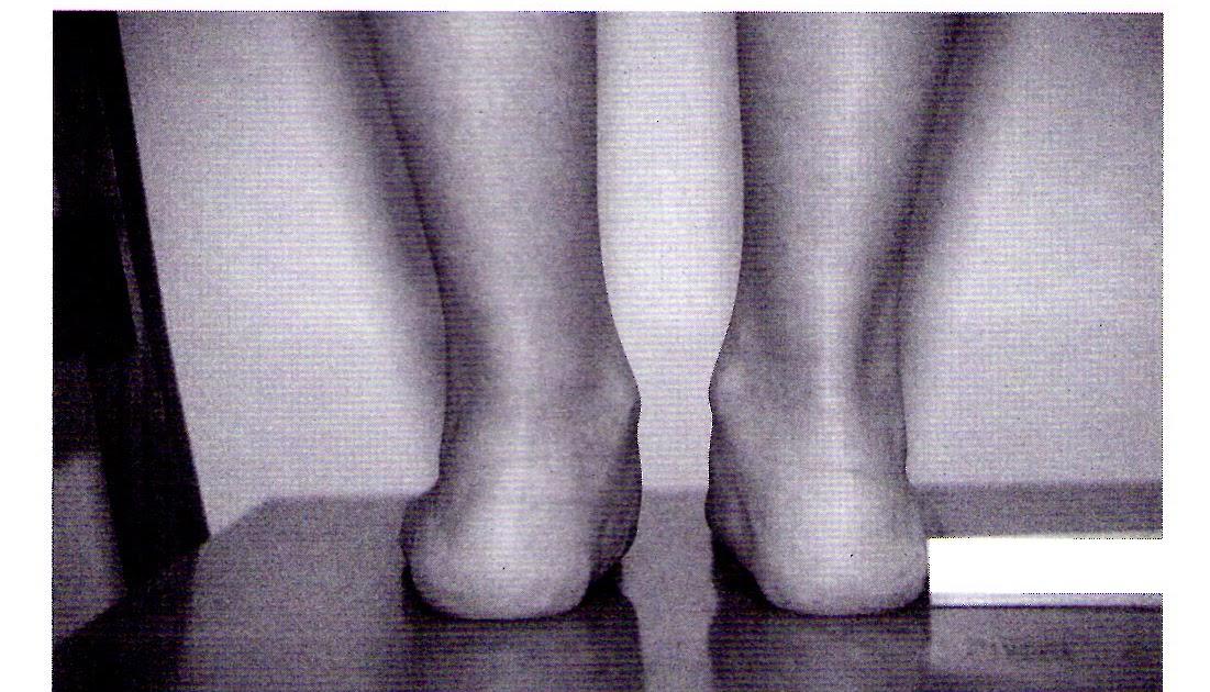Frazione 2 schemi di trattamento a psoriasi