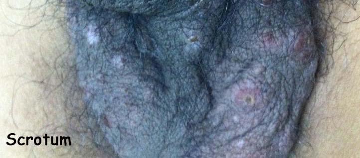 20 Y O Man With Multisystem Disease