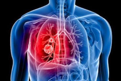 10 Masalah Kesehatan Berada di Ruangan AC