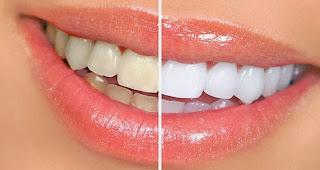 Trik Cara Memutihkan Gigi Secara Sehat dan Alami Tanpa Efek Samping