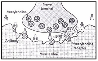 Neuromuscular junction in patients with myasthenia gravis (MG)
