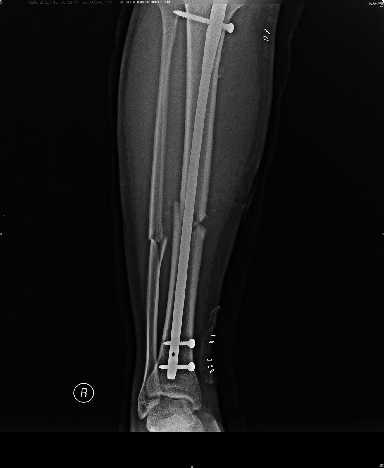 Fractured Tibia Bone images