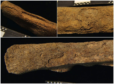 One of the oldest cases of tuberculosis is discovered