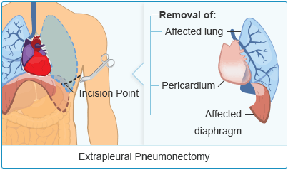 Extrapleural Pneumonectomy (EPP)