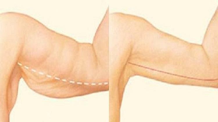 5 نصائح للتخلص من دهون الذراعين نهائيًا