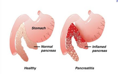 Pancreas homeopathy treatment clinic in chennai