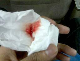 tbc | batuk berdarah