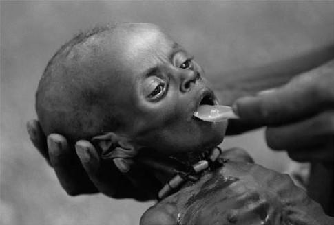 http://1.bp.blogspot.com/-_a36_5RFvbs/TeTlH9Q6NxI/AAAAAAAAAKc/OXAGDYtounk/s1600/fome-em-africa.jpg