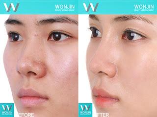 foto sebelum dan sesudah operasi plastik hidung-6