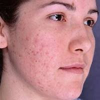bad-skin-with-acne