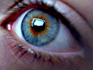 Heterochromia sentral
