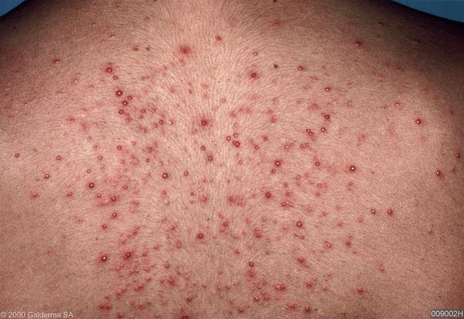 Hot Tub Rash ( Pseudomonas Folliculitis) - skinsight.com