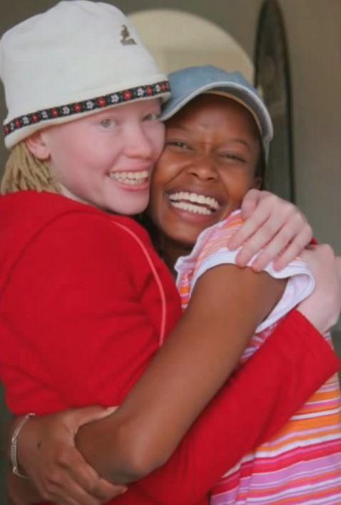Twin Sisters, One albino