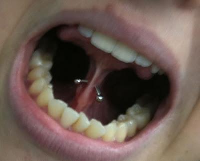 Piercing no Freio da língua Inferior