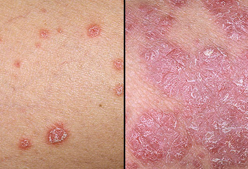 how common is psoriasis