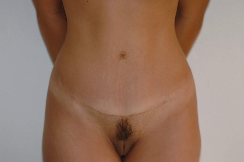 epilation sexe sexe poilue