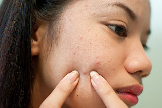 Acne Problems And Its Effects