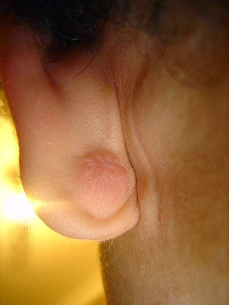 epidermal nodule on the ear lobe