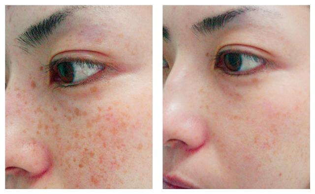 Natural Treatment For Nevus Of Ota